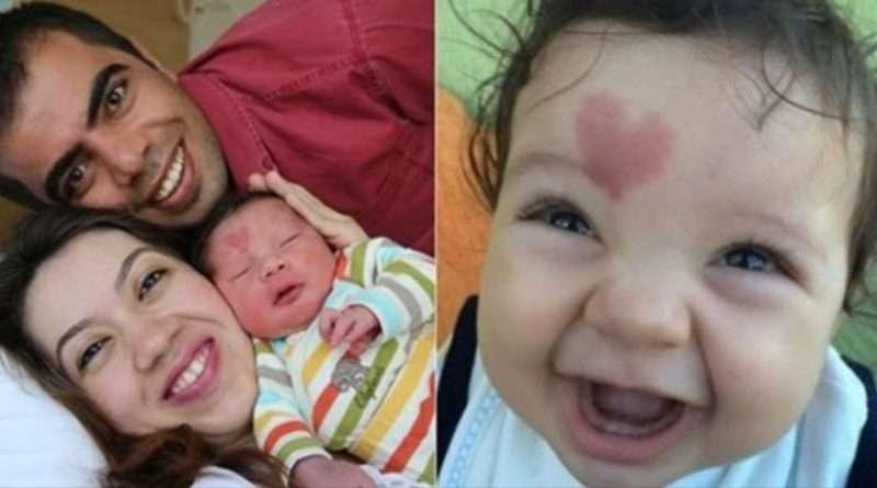 Дитана яка народилася з родимою плямою на чолі у вигляді серця. Подивіться як він виглядає зараз