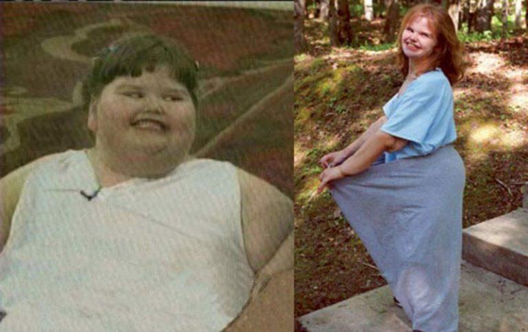Пам'ятайте товсту дівчинку, яка важила в 7 років 220 кг? Тільки п0дивіться як вони зара виглядає
